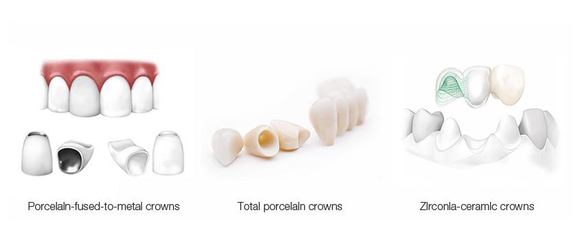 виды зубных коронок