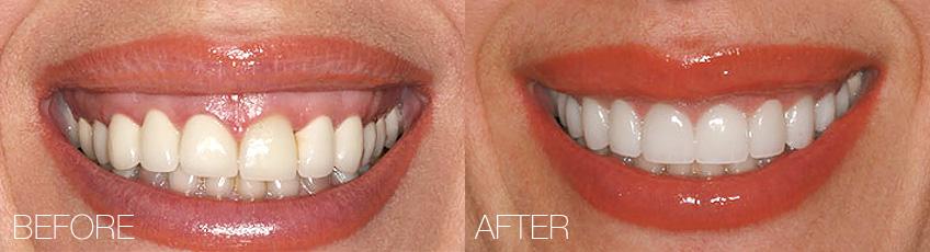 Расширение коронки зуба